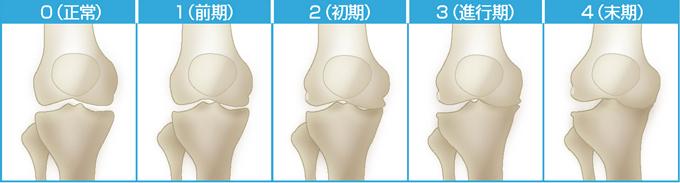 変形性膝関節症の治療に応用が期待|ご存知ですか? 痛みの軽減が期待されるAPS療法|整形外科の再生医療ガイド|関節ライフ